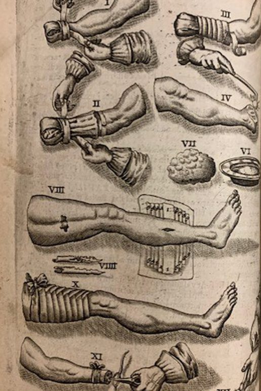 Armamentariun chirurgicum